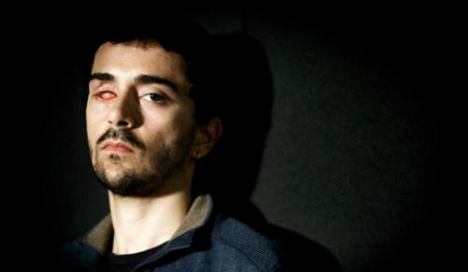 Man wins €200,000 damages for eye lost to rubber bullet